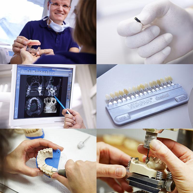 Implantate und Zahnersatz